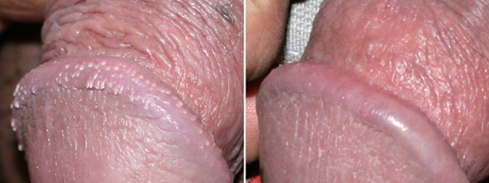 Pearly Penile Papules - before and after removal