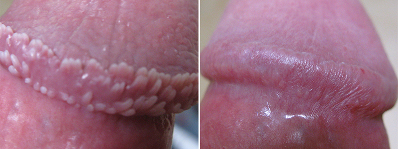 How to get rid of pearly white papules